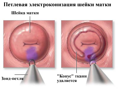 Эрозия шейки матки как лечить радиоволновой метод